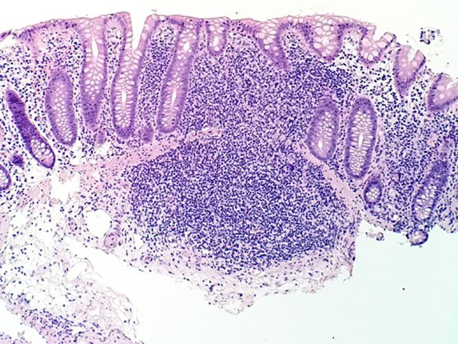 Lumia-Microscope-shot