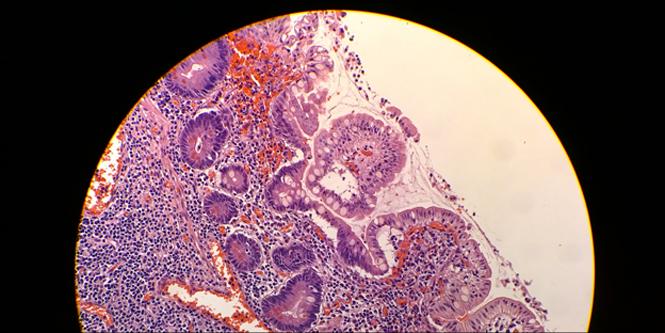 Lumia-Microscope-shot2