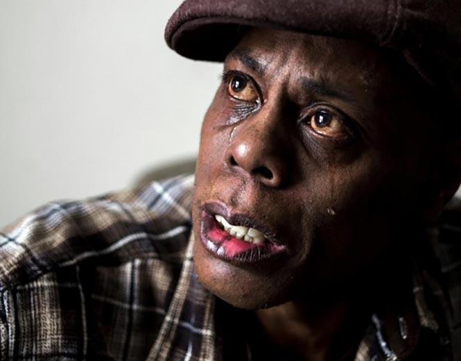 Ο Gerry Woodberry, 50 ετών, του οποίου η χρόνια αρρώστια που έχει επιδεινώθηκε από το μολυσμένο νερό.