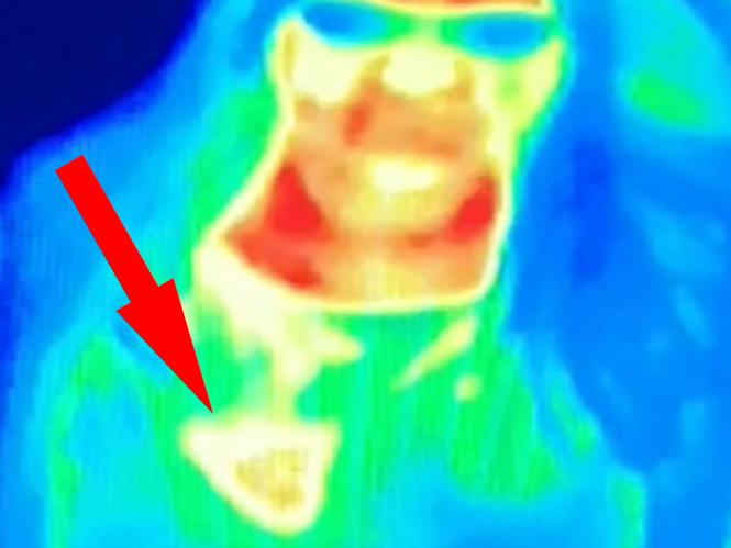 Θερμική κάμερα σε μουσείο αποκάλυψε σε μία γυναίκα ότι έχει καρκίνο του μαστού
